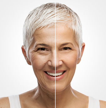 Redermalization: different application points. Dark circles, hyperpigmentation, perioral rejuvenation. One solution for different age related changes.